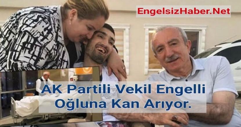 AK Partili Vekil Miroğlu  Engelli Oğlu İçin Yardım İstiyor.